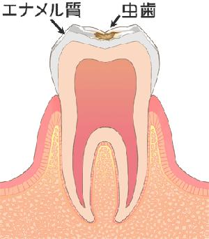 C1[初期のむし歯]