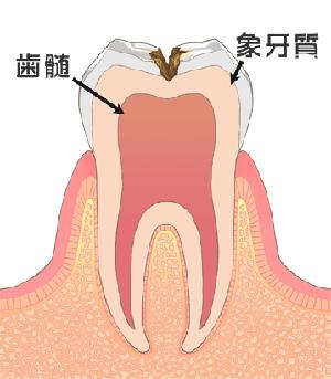 C2[象牙質のむし歯]