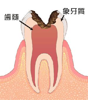 C3[神経のむし歯]
