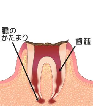 C4[末期のむし歯]
